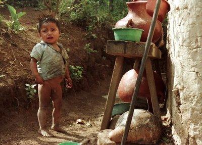 Desnutrición-Honduras1